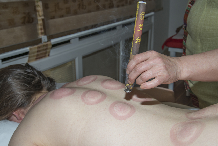Seance-Ventouse-et-Moxa-Lanqi-Spa-Massage-Chinois-Tui-na-Paris-Neuilly